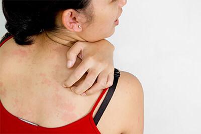 Welche Kleidung eignet sich bei empfindlicher Haut?